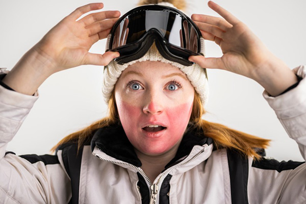A blonde skißer pushes up her goggles to show severely sunburned nose. cheeks, and chin.
